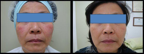 Before and after Clearlift