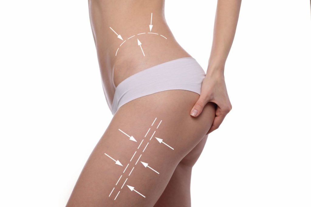 Injection Lipolysis