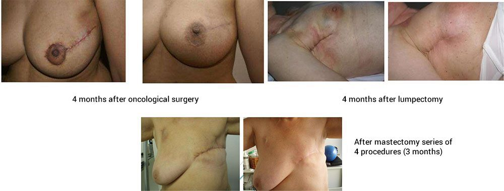before and after lumpectomy