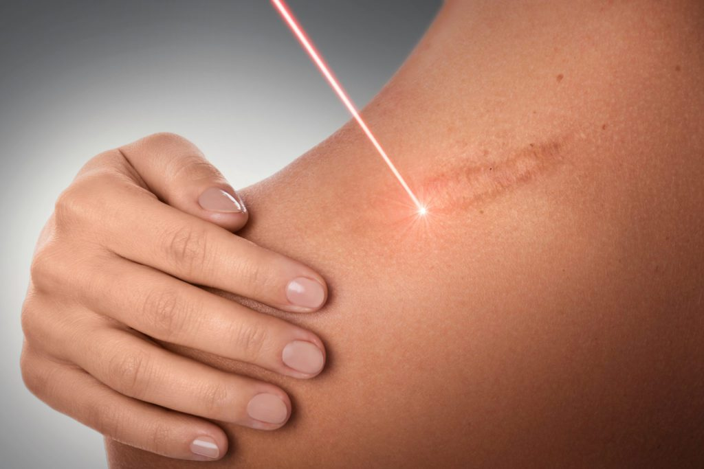 Laser scars and stretch marks removal
